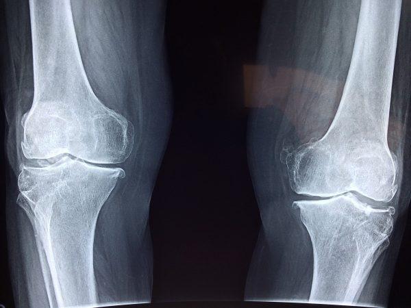 Artrose in de heup en knie